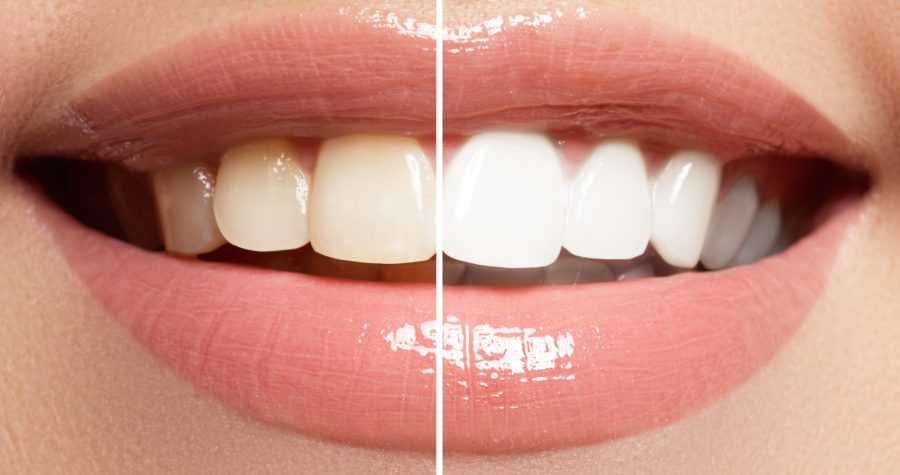 Teeth whitening Melbourne – Tarneit Smiles